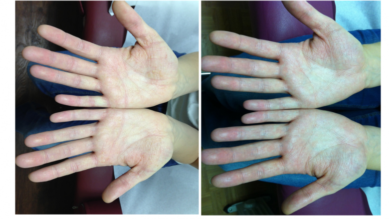 Ecsema (Atopic Dermatitis) Treated at St. Louis Acupuncture and Chinese Herbal Medicine