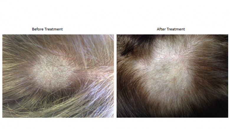 Hair Loss treated at St. Louis Acupuncture and Chinese Herbal Medicine